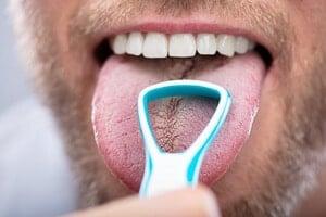 Zungenschaber im Test: So klappt das Zunge reinigen mit Zungenreiniger