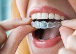 14914Zahnfehlstellung (Malokklusion): Wie man schiefe Zähne richten kann
