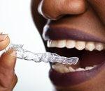 14988Invisalign-Aligner: Alles über die durchsichtige Zahnspange