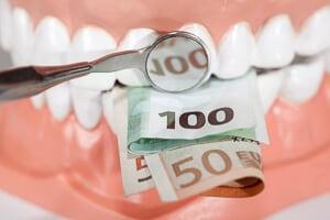 Kosten für die Zahnbehandlung mit Alignern