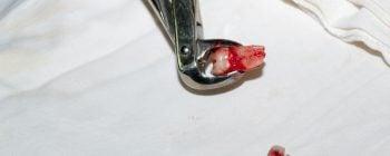 Wie sieht der Ablauf einer Zahnextraktion aus