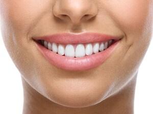 Garde weiße Zähne dank Aligner von Smileunion