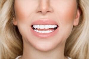 Gerade Zähne und lächelnde Frau