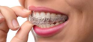 Wie lange muss man eine Zahnspange tragen? Tragedauer bei Invisalign