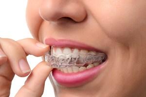 Frau trägt durchsichtige Zahnschiene (Aligner)