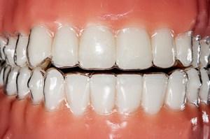 Unsichtbare Zahnschiene von Invisalign