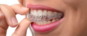 Invisalign München: So finden Sie passende Anbieter für die Zahnkorrektur