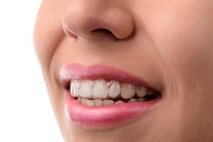 Frau lächelt mit unsichtbarer Zahnspange