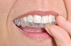 PlusDental unsichtbare Zahnschiene