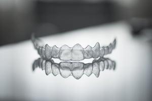 Unsichtbare Zahnspange - Aligner