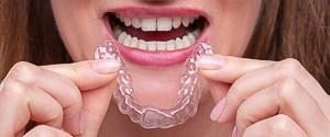 Wie schnell verschieben sich Zähne mit Zahnspange und Clear Alignern?