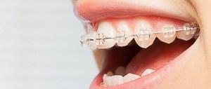 Wann braucht man eine Zahnspange als Erwachsener für gesunde Zähne?