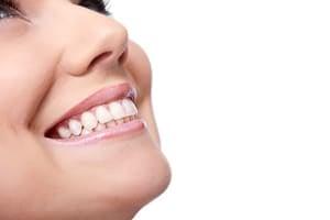 Frau lächelt nach dem Zähne begradigen mit Invisalign