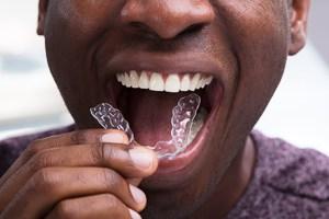 Mann setzt lose Zahnspange ein.