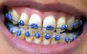 braces with coloured elastics