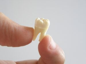 extracted tooth picture