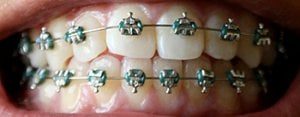 braces in molar city