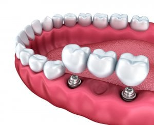 tooth bridge implant