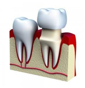 diagram of tooth cap