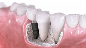 section of mouth implant