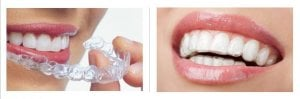 treatment with clear braces