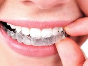 inserting teeth aligner