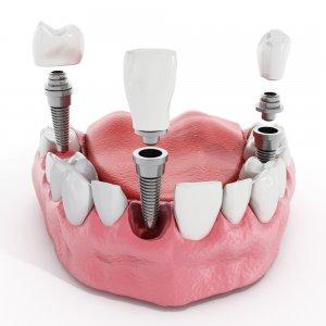 aesthetic teeth implants