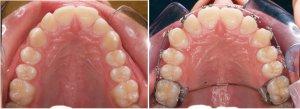 braces inside mouth