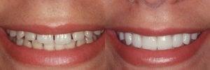 dental veneers before and after