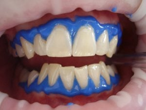dental whitening process