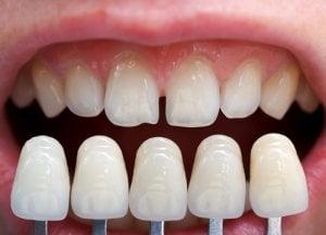 checking teeth shade
