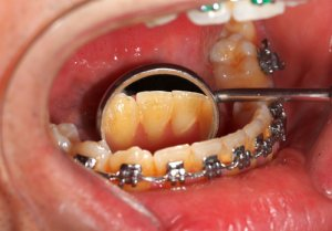 tartar on teeth with braces