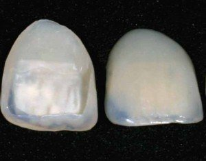 porcelain tooth covers
