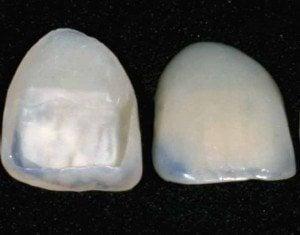 porcelain tooth veneers
