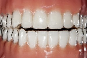 teeth with invisible aligner braces