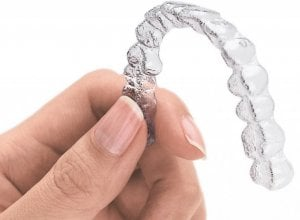 clear plastic teeth aligner