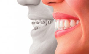 traditional braces compared to invisalign