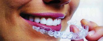 invisalign before after uk