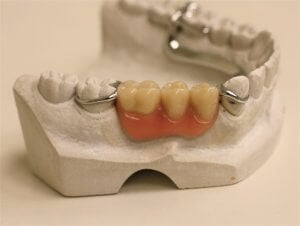 dentures to replace teeth