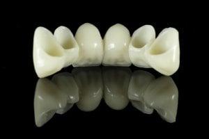 bridge for front teeth