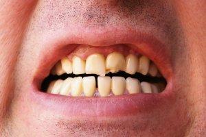 dents ayant besoin de couronnes