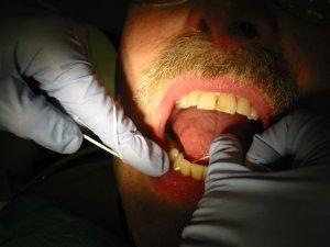 dentiste, soie dentaire, dents patient