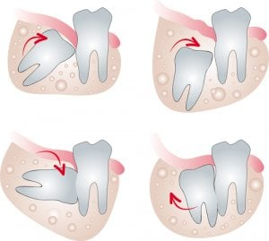 third molar impaction