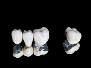 dental bridge and crown