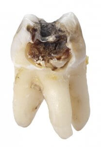 tooth caries and cavity
