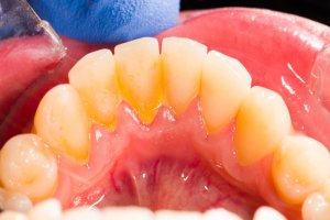 front teeth with swollen gums and plaque