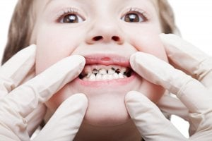 dental caries child