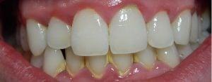image of dental plaque buildup on teeth