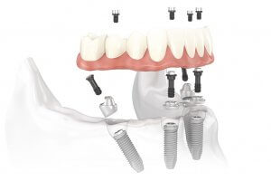 teeth implants cancun