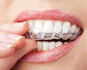 teeth straightening with aligner